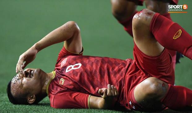 Góc chạnh lòng: Trọng Hoàng đứng một mình buồn thiu với đầu gối chảy máu khi cả đội đang ăn mừng vô địch SEA Games - Ảnh 3.