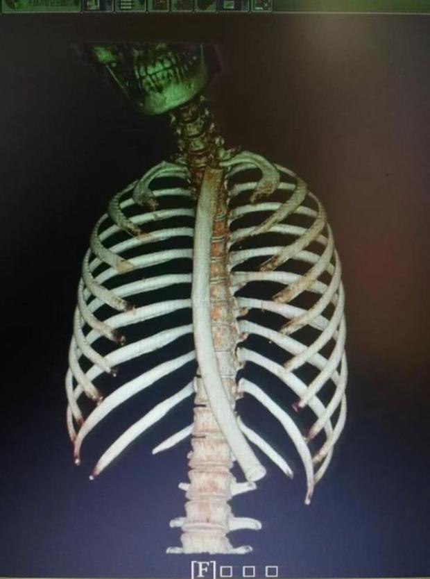 Học mẹo giảm cân gây sốt MXH Trung Quốc, cô gái vô tình nuốt chửng ống nhựa dài 30cm  - Ảnh 2.