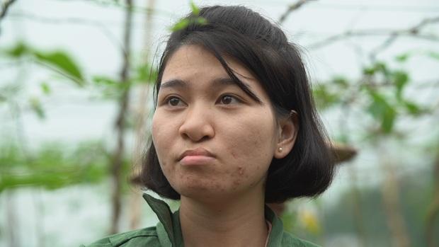 Từng bị miệt thị để nó chết đi còn hơn, cô gái có dị tật hở hàm ếch quyết tâm lột xác để sống cuộc đời mới - Ảnh 2.