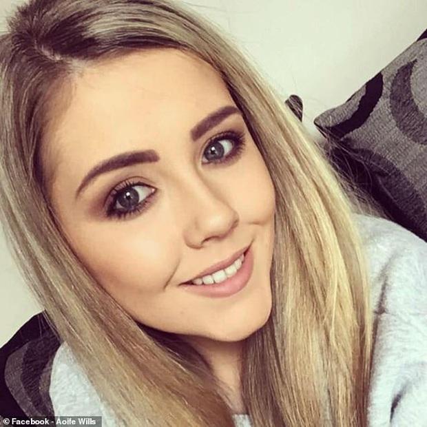 Đi tẩy trắng răng ở nơi thiếu uy tín, cô gái người Ireland phải chịu tổn thương lớn trên hàm răng của mình - Ảnh 3.
