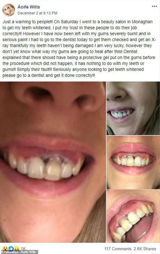 Đi tẩy trắng răng ở nơi thiếu uy tín, cô gái người Ireland phải chịu tổn thương lớn trên hàm răng của mình - Ảnh 1.