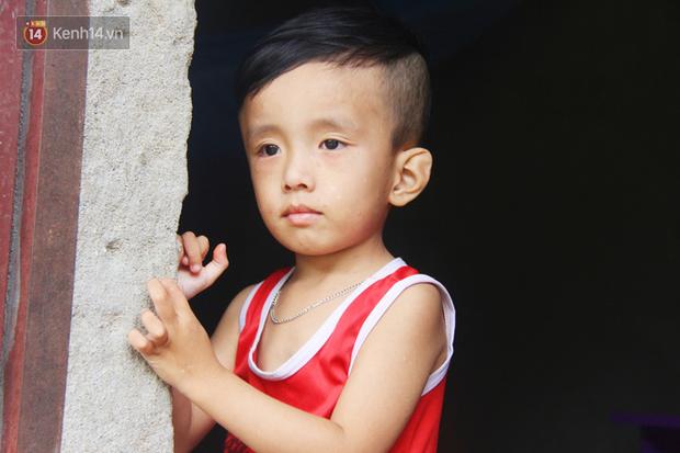 Đường cùng của người mẹ tìm cách bán thận cứu con trai 4 tuổi u não, nào ngờ phát hiện bản thân bị viêm gan C giai đoạn cuối - Ảnh 8.