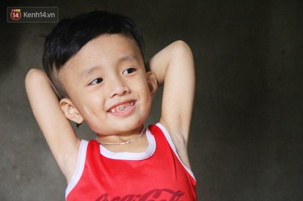 Đường cùng của người mẹ tìm cách bán thận cứu con trai 4 tuổi u não, nào ngờ phát hiện bản thân bị viêm gan C giai đoạn cuối - Ảnh 6.