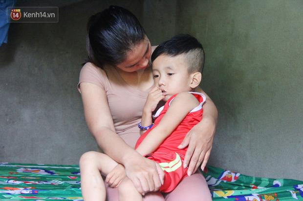 Đường cùng của người mẹ tìm cách bán thận cứu con trai 4 tuổi u não, nào ngờ phát hiện bản thân bị viêm gan C giai đoạn cuối - Ảnh 1.