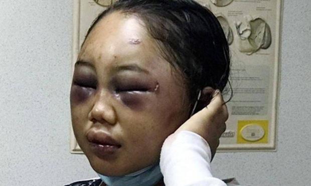 Thiếu nữ Indonesia làm osin ở Hong Kong: Bị lột đồ, hành hạ đến thân tàn ma dại và vấn nạn đau đầu về luật bảo vệ người giúp việc ở nước ngoài - Ảnh 5.