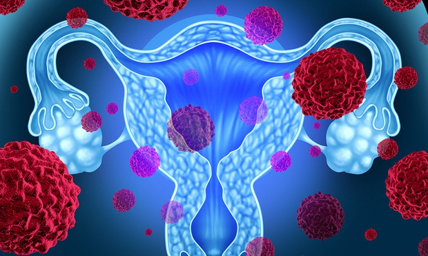 Cô gái 26 tuổi, chưa từng quan hệ được bác sĩ lấy ra khối u nặng tới 9kg, thậm chí còn không ngờ mình bị ung thư buồng trứng - Ảnh 2.