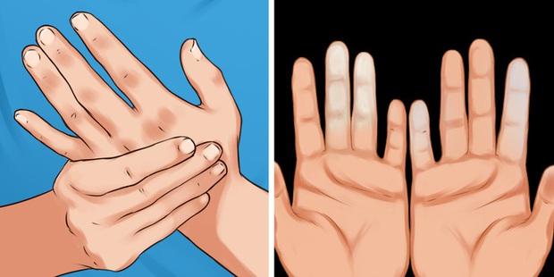 Cẩn thận với căn bệnh thường gặp phải khi trời lạnh khiến ngón tay và ngón chân của bạn đổi màu trắng xanh - Ảnh 1.