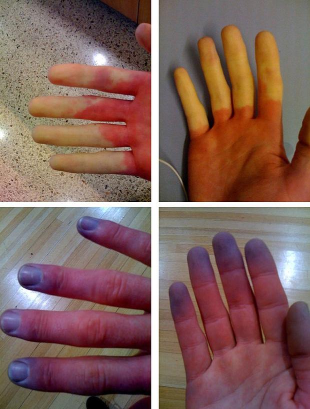 Cẩn thận với căn bệnh thường gặp phải khi trời lạnh khiến ngón tay và ngón chân của bạn đổi màu trắng xanh - Ảnh 4.