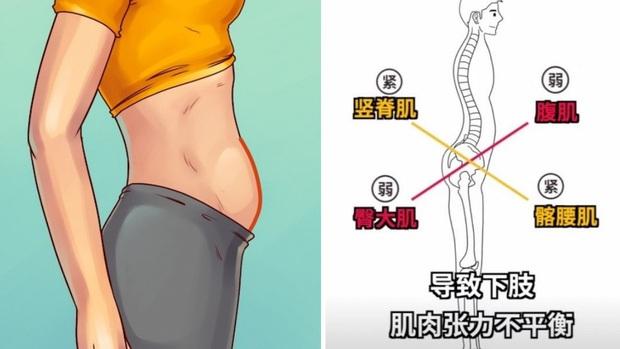 Có 3 kiểu béo bụng không phải do thừa cân, béo phì mà ngầm cảnh báo một vài căn bệnh khác - Ảnh 3.
