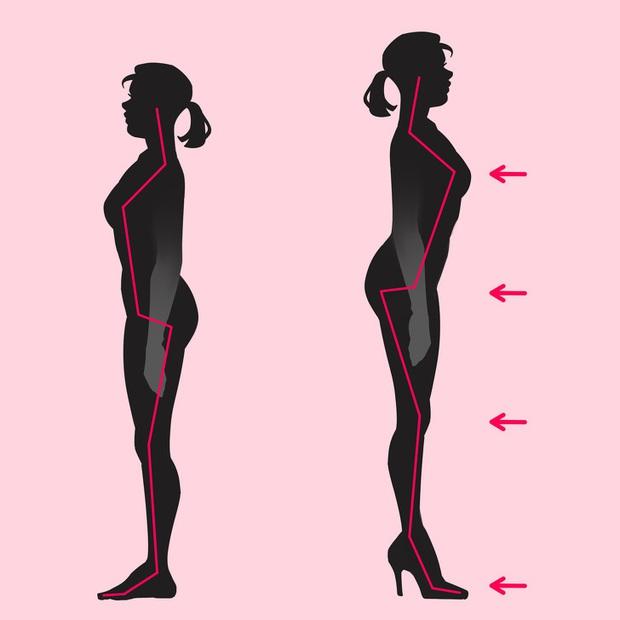 Giày cao gót không chỉ làm đau đôi chân của bạn: có 3 bộ phận cơ thể khác cũng chịu ảnh hưởng không kém - Ảnh 1.