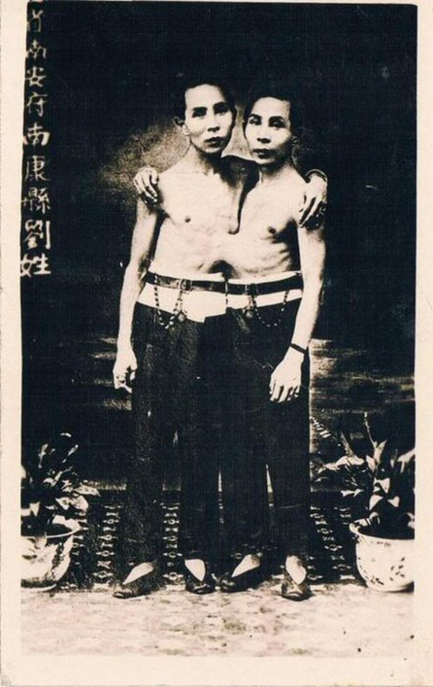 Cuộc sống lạ kỳ của cặp song sinh dù dính liền nhau nhưng vẫn mỗi người một vợ, sinh liền tù tì cả thảy 21 người con - Ảnh 2.