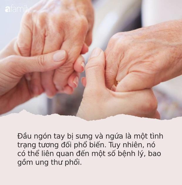 Những dấu hiệu nhìn là thấy của bệnh ung thư ác tính trên bàn tay và bàn chân mà rất nhiều người bỏ qua - Ảnh 1.