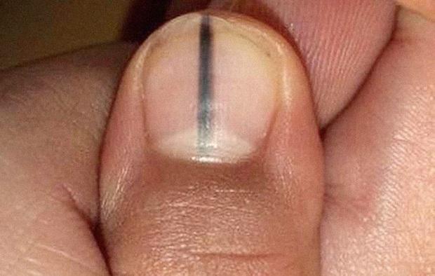 Những dấu hiệu nhìn là thấy của bệnh ung thư ác tính trên bàn tay và bàn chân mà rất nhiều người bỏ qua - Ảnh 3.
