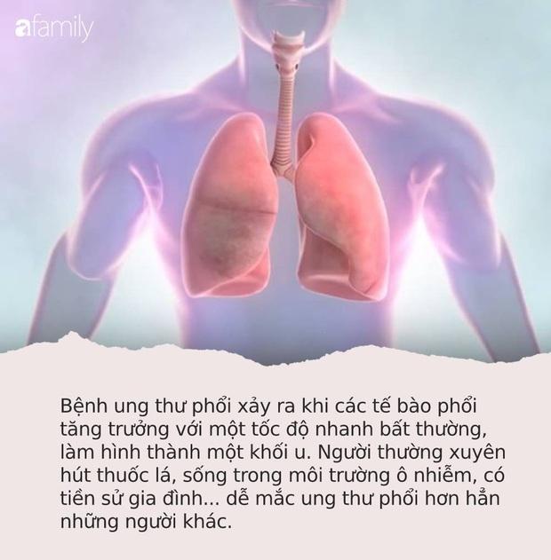 """Tế bào ung thư phổi thường bị """"kích thích"""" khi gặp 4 kiểu người này: Nếu có tên, bạn cũng nên đi khám sớm - Ảnh 1."""