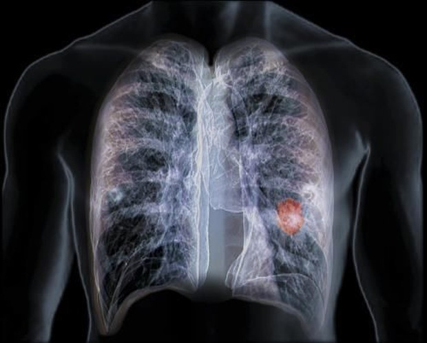 """Tế bào ung thư phổi thường bị """"kích thích"""" khi gặp 4 kiểu người này: Nếu có tên, bạn cũng nên đi khám sớm - Ảnh 2."""