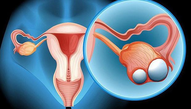 Thay đổi thói quen ăn uống: hội con gái không những đẩy lùi nguy cơ vô sinh mà còn tránh được một số bệnh ở buồng trứng - Ảnh 1.