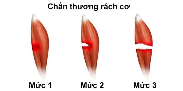 chan-thuong-rach-co-huy-toan