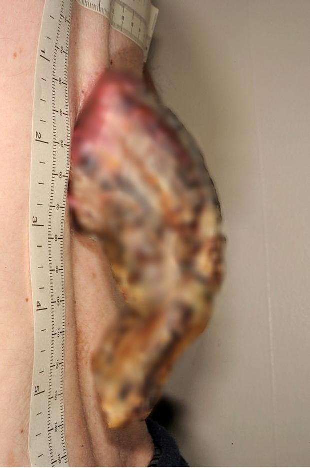 Phớt lờ miếng da nhỏ sần sùi trên lưng, 3 năm sau người đàn ông tá hỏa khi nó biến thành một cái 'sừng' 14cm bị ung thư - Ảnh 2.