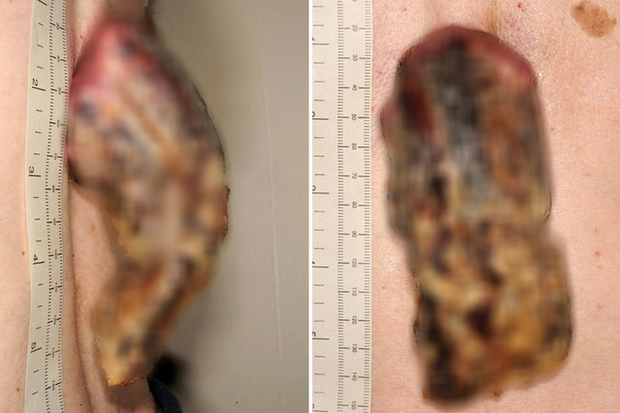Phớt lờ miếng da nhỏ sần sùi trên lưng, 3 năm sau người đàn ông tá hỏa khi nó biến thành một cái 'sừng' 14cm bị ung thư - Ảnh 1.