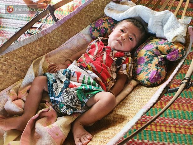 Lời khẩn cầu của người bố ẵm con trai 8 tháng tuổi không có hậu môn, bị suy dinh dưỡng nặng nằm chờ chết trong căn nhà lá xập xệ - Ảnh 8.