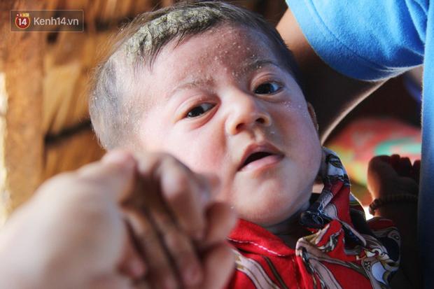 Lời khẩn cầu của người bố ẵm con trai 8 tháng tuổi không có hậu môn, bị suy dinh dưỡng nặng nằm chờ chết trong căn nhà lá xập xệ - Ảnh 11.