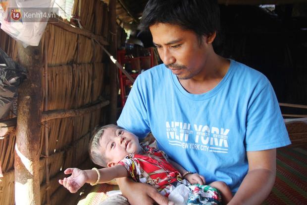 Lời khẩn cầu của người bố ẵm con trai 8 tháng tuổi không có hậu môn, bị suy dinh dưỡng nặng nằm chờ chết trong căn nhà lá xập xệ - Ảnh 1.