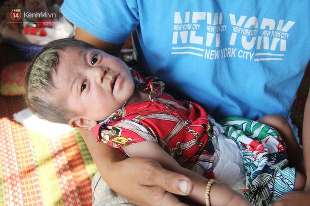 Lời khẩn cầu của người bố ẵm con trai 8 tháng tuổi không có hậu môn, bị suy dinh dưỡng nặng nằm chờ chết trong căn nhà lá xập xệ - Ảnh 2.
