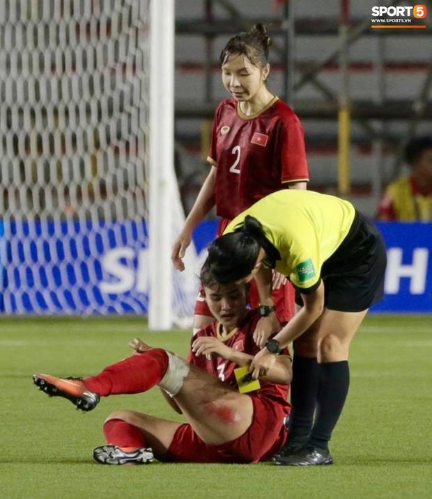 Xót xa nhìn vết thương đau đớn khiến nữ cầu thủ Việt Nam không ngủ nổi sau trận thắng Thái Lan ở SEA Games 30 - Ảnh 2.
