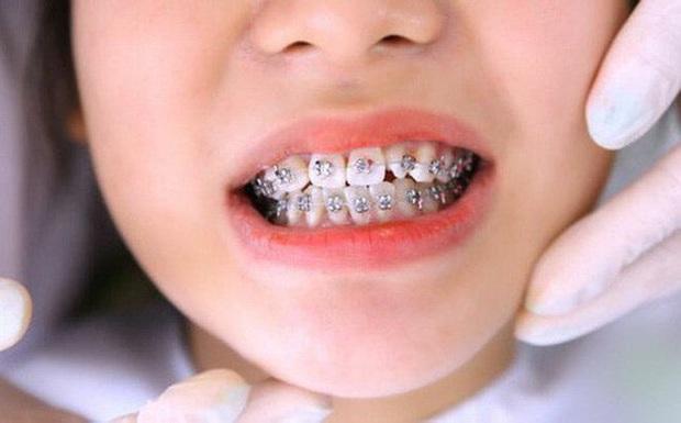 """Loạt sao chứng minh sức mạnh vi diệu của niềng răng và thời điểm vàng để bạn """"cứu vãn"""" nhan sắc nhờ chỉnh nha - Ảnh 8."""