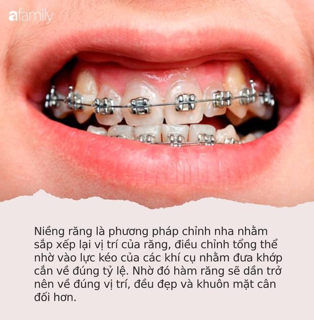 """Loạt sao chứng minh sức mạnh vi diệu của niềng răng và thời điểm vàng để bạn """"cứu vãn"""" nhan sắc nhờ chỉnh nha - Ảnh 6."""