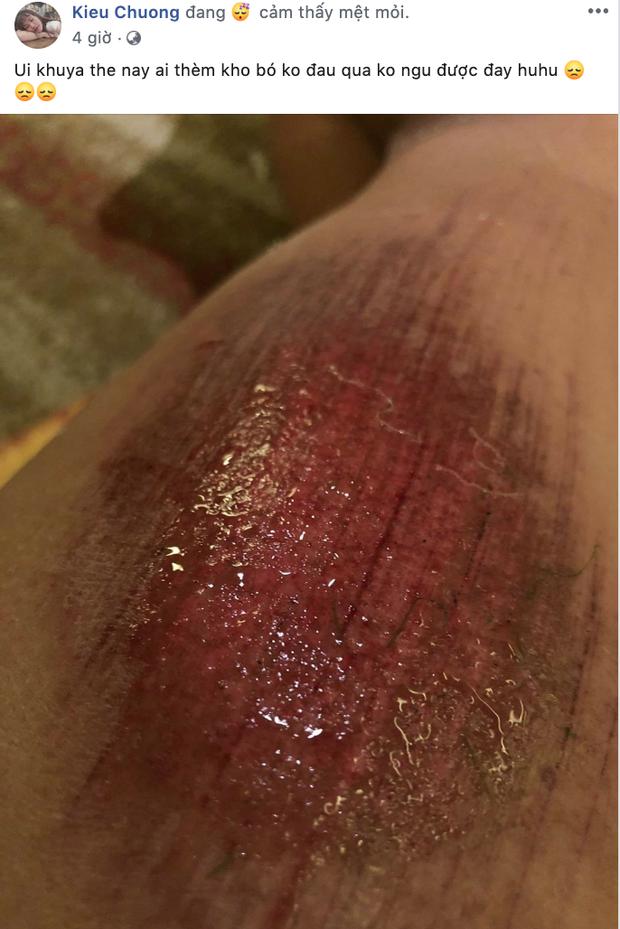 Xót xa nhìn vết thương đau đớn khiến nữ cầu thủ Việt Nam không ngủ nổi sau trận thắng Thái Lan ở SEA Games 30 - Ảnh 1.