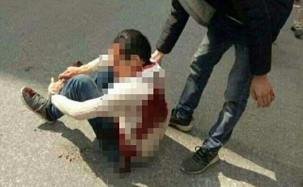 Nam thanh niên bị 2 đối tượng rượt đuổi, chém trọng thương trên phố bị nhiễm HIV - Ảnh 1.