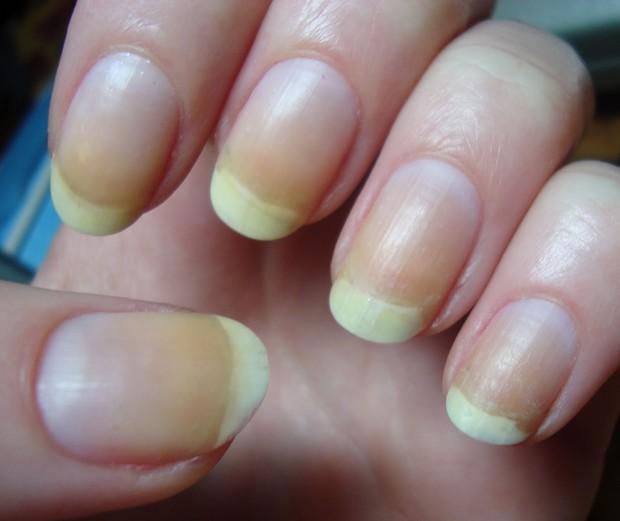 Nhìn dấu hiệu bất thường trên móng tay cũng có thể biết được bạn đang gặp phải những vấn đề sức khỏe gì - Ảnh 2.