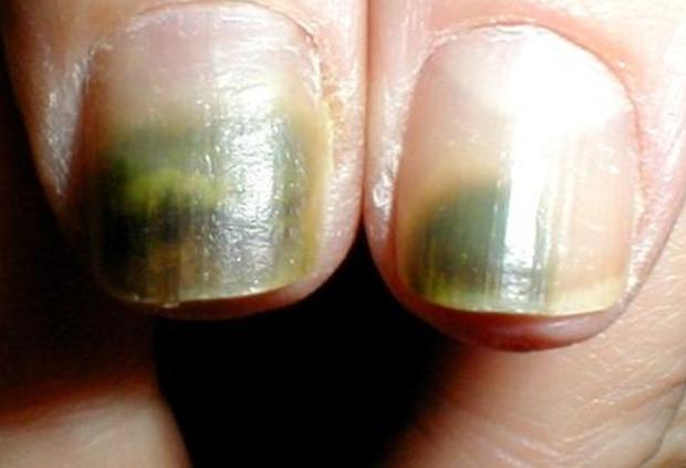 Nhìn dấu hiệu bất thường trên móng tay cũng có thể biết được bạn đang gặp phải những vấn đề sức khỏe gì - Ảnh 4.