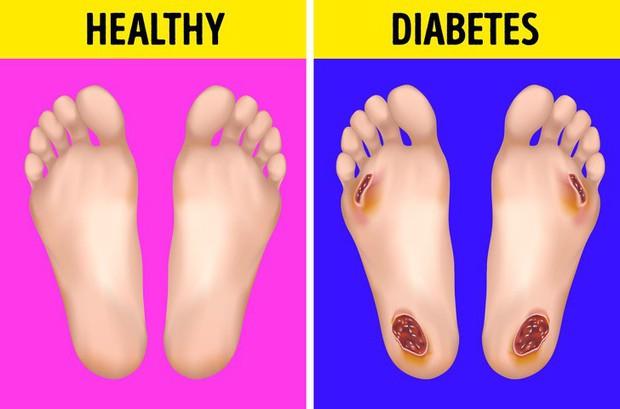 Cẩn thận với những biểu hiện khác thường ở bàn chân đang ngầm cảnh báo sớm bệnh tiểu đường - Ảnh 2.