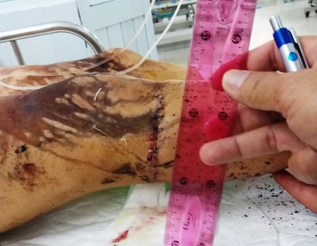 Người nhà Việt kiều bị tạt a xít ở Quảng Ngãi nói gì? - Ảnh 2.