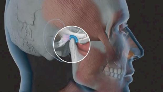 6 vấn đề sức khỏe ở vùng răng miệng mà không phải ai cũng biết, đặc biệt là cái số 3 - Ảnh 5.