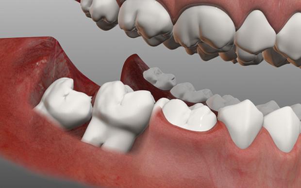 Có thể bạn đã mắc bệnh viêm nướu răng nếu gặp phải một trong các vấn đề sau - Ảnh 3.