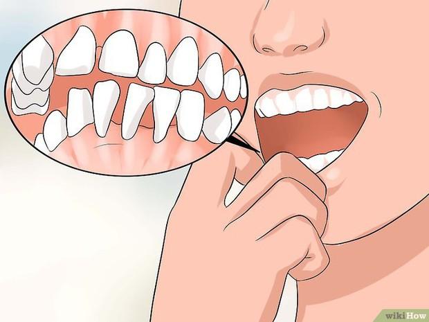 Có thể bạn đã mắc bệnh viêm nướu răng nếu gặp phải một trong các vấn đề sau - Ảnh 5.