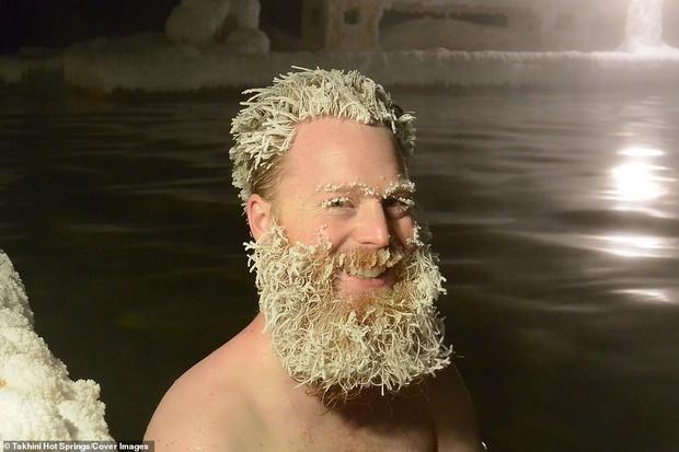 Cuộc thi tóc đóng băng quái dị tiếp tục khuấy đảo suối nước nóng Canada năm nay - Ảnh 1.