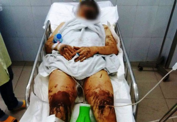Vụ nam Việt kiều bị tạt axit, cắt gân chân khi về quê ăn Tết: Anh trai nạn nhân vội vã rời khỏi Việt Nam không rõ lý do - Ảnh 1.