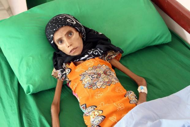 Bé gái 12 tuổi da bọc xương trở thành biểu tượng đầy ám ảnh của cuộc chiến tại Yemen - Ảnh 1.