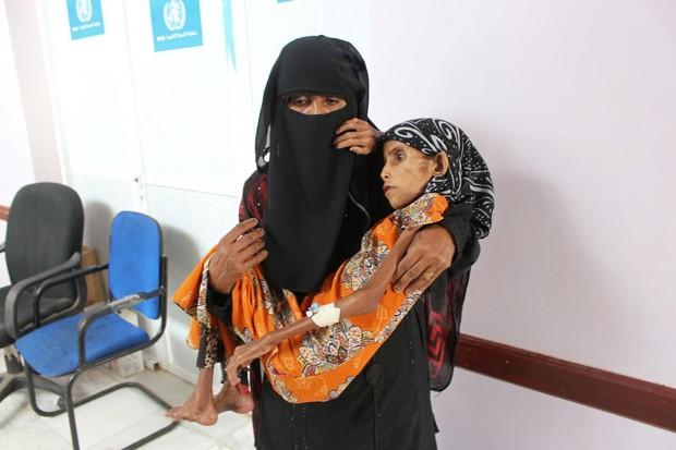 Bé gái 12 tuổi da bọc xương trở thành biểu tượng đầy ám ảnh của cuộc chiến tại Yemen - Ảnh 2.