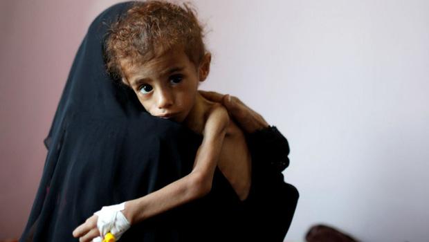 Bé gái 12 tuổi da bọc xương trở thành biểu tượng đầy ám ảnh của cuộc chiến tại Yemen - Ảnh 3.