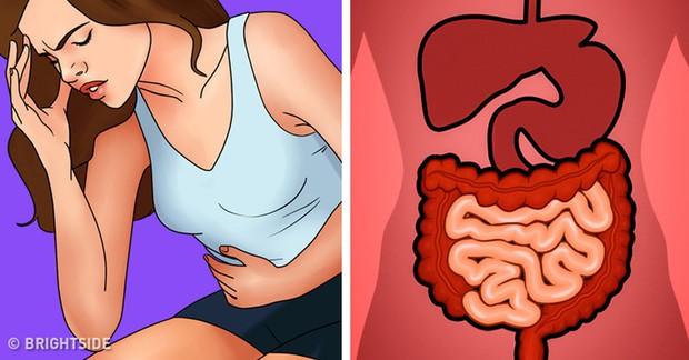 Cẩn thận với 5 vấn đề tiêu hóa rất dễ gặp phải trong dịp Tết mà bạn cần chú ý phòng tránh - Ảnh 4.