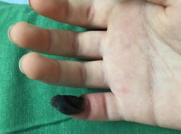 Bé gái hoại tử ngón tay vì tự chữa mụn cóc bằng thuốc mua trên mạng - Ảnh 1.
