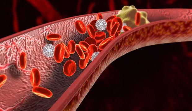 Một thói quen xấu của giới trẻ gây ra bệnh huyết khối tĩnh mạch sâu khiến đôi chân bị biến dạng - Ảnh 3.