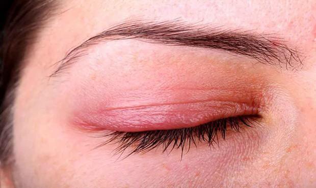 Nhiều người gặp phải tình trạng ngứa khóe mắt nhưng không biết rõ nguyên nhân đến từ đâu - Ảnh 6.