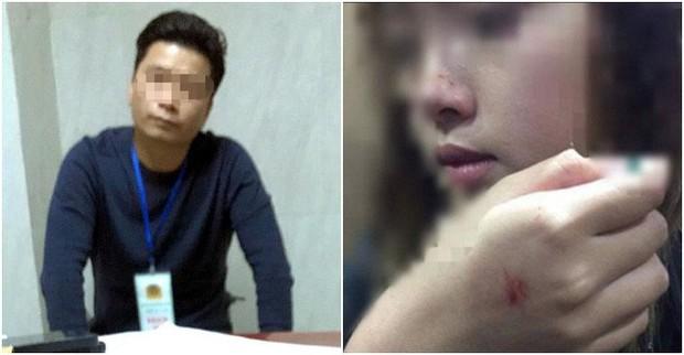 Báo Hàn đưa tin vụ cô gái Việt bị cưỡng hôn trong thang máy nhưng yêu râu xanh chỉ bị phạt 200.000 đồng - Ảnh 1.