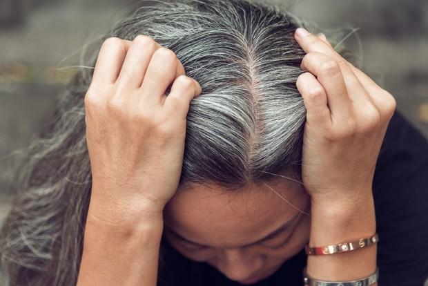 Một vài dấu hiệu khác thường ở mái tóc đang ngầm báo hiệu nhiều vấn đề sức khỏe tiềm ẩn - Ảnh 4.